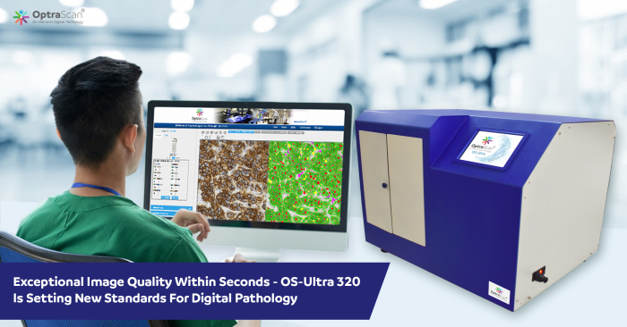 Unparalleled Image Quality at an affordable price - OptraSCAN OS-Ultra WSI