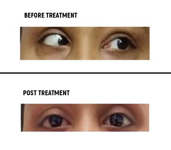 Pre and Post Treatment